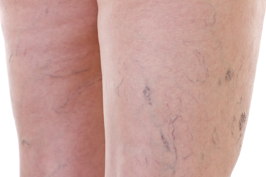 vene varicoase venectaziile picioare