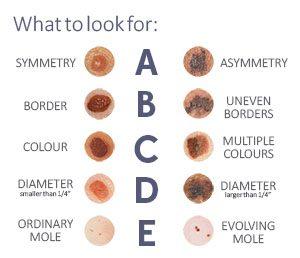 alunitele tumori benigne