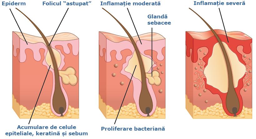 stadii de dezvoltare pustula acneea vulgara