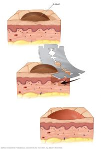 biopsia cutanta de tip shave ca metoda de diagnostic in bolile de piele