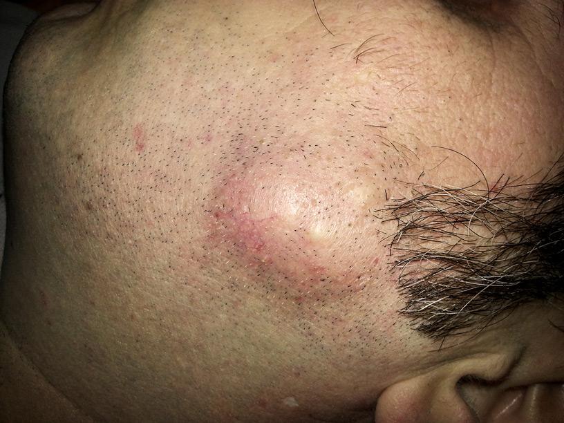 chisturi sebacee epidermic fata barbat