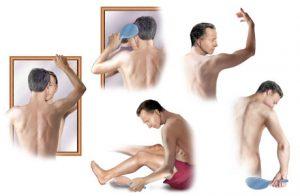 autoexaminarea piele pacient cancer de piele nevi alunite