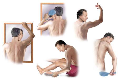 auto-examinarea autoexaminarea pielii pacientului in oglinda - cancer de piele malign - cancerele de piele