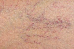 venectaziile vene varicoase telangiectazii spider veins