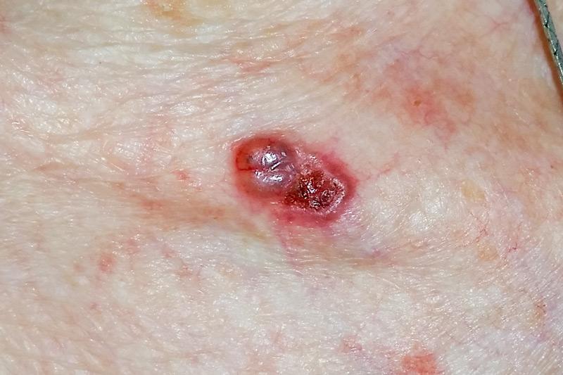 carcinom epiteliom bazocelular bazaliom piele tegument clavicula