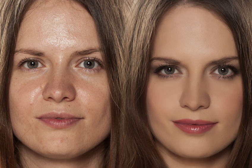 seboree femeie piele lucioasa uleioasa hiperseboree