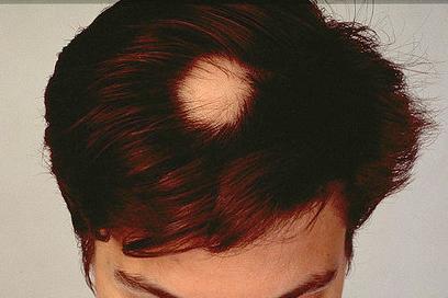 alopecia areata femeie barbat par scalp