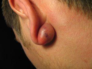 chist sebaceu retroauricular epidermic tumora