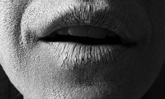 dermatita atopica piele uscata xeroza fata