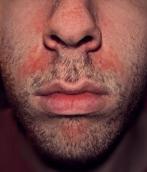 seboree dermatita seboreica fata barbat