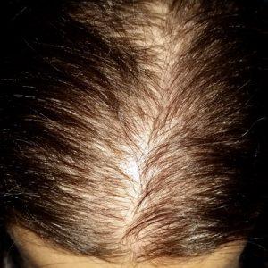 alopecie androgenetica femeie foto trichoscopie