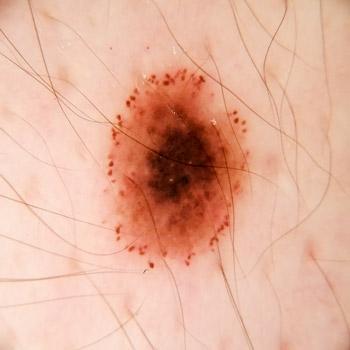 nev pigmentar in crestere alunita piele dermatoscopie