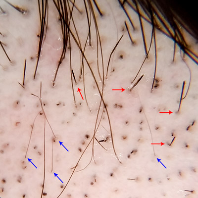 alopecia areata foto trichoscopia peri exclamatie