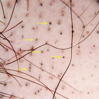 alopecia areata peri cadaverizati trichoscopie