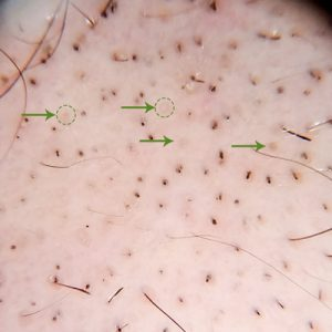 alopecia areata trichoscopie foto yellow dots