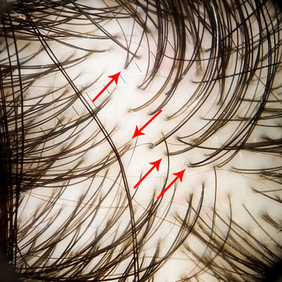 scalp normal imagine tricoscopie image hair scalp