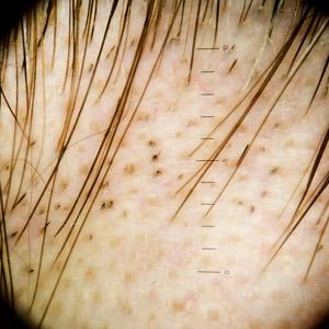 alopecia areata scalp par piele