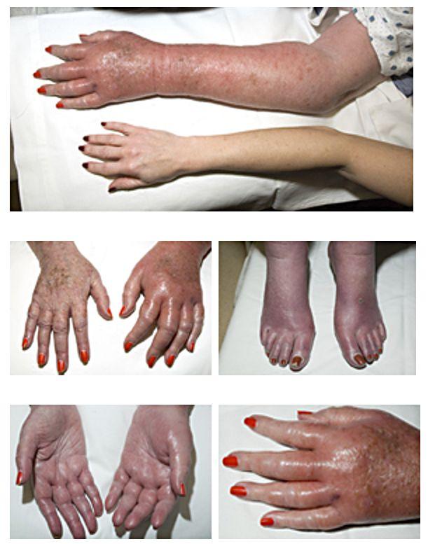 eritromelalgia brate maini picioare frig piele iarna