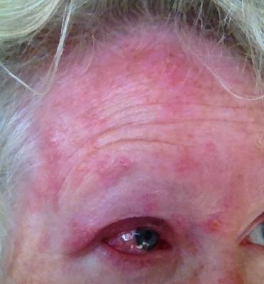 zona zoster faciala afectare oftalmica ziua 7