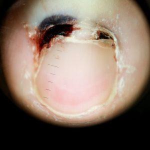 Onicomadezis post-traumatic index aratator