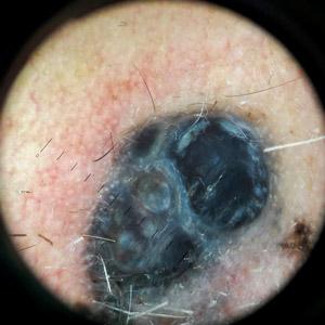 melanom cutanat nodular imagine nodul dermatoscopie