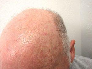 imagine foto keratoze actinice pe scalp
