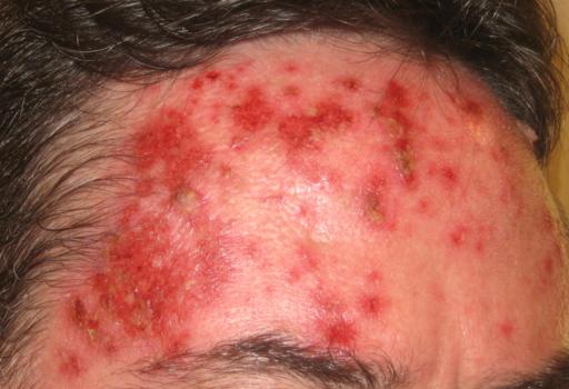 foto imagine keratozele actinice pe frunte tratate cu imiquimod Aldara