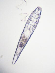 demodex folliculorum microscop optic imagine