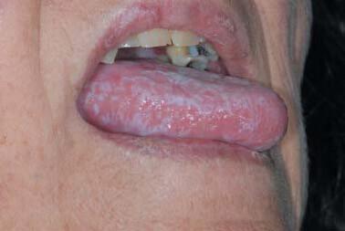 lichen plan pe limba femeie batrana