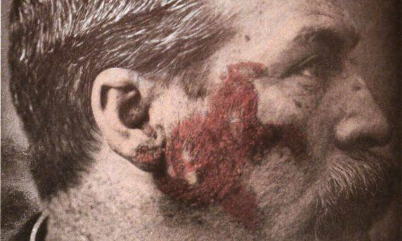 lupus eritematos cutanat fata barbat caucazian