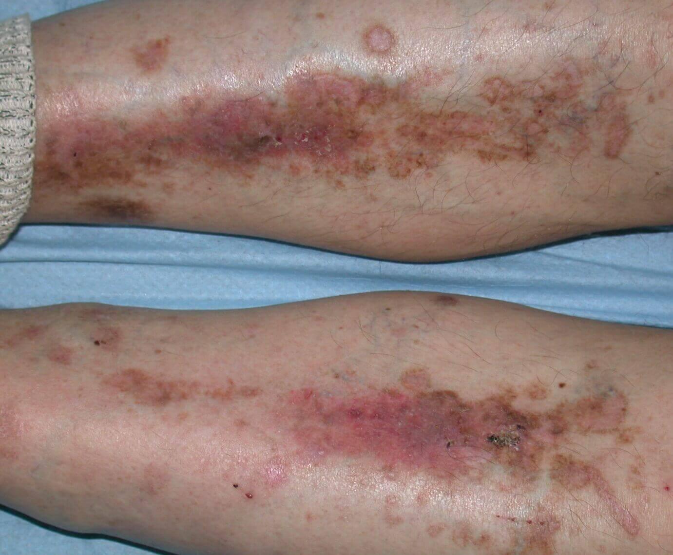 dermopatie diabetica gambe tibii pielea in diabet zaharat