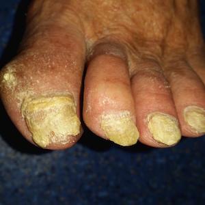 onicomicoza tinea ciuperca unghii picioare barbat