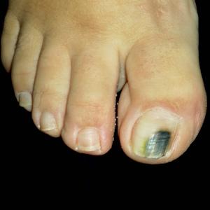 onicomicoza haluce femeie ciuperca unghie mare picior