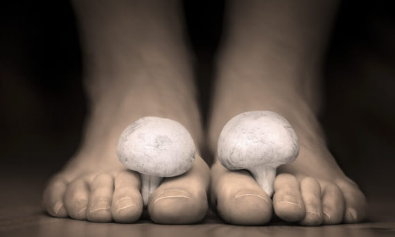 onicomicoza unghii picioare maini ciuperca unghiilor tinea