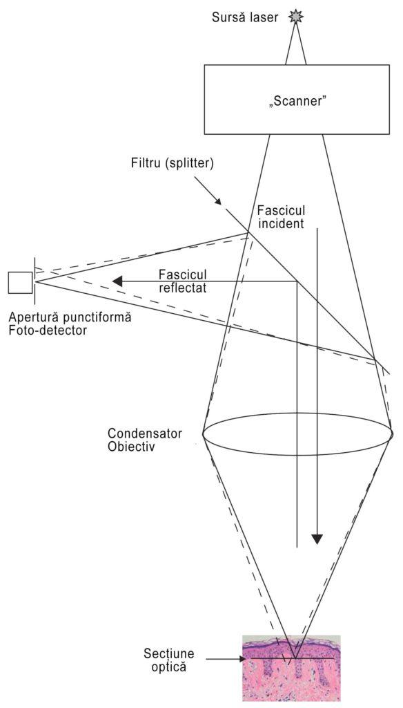schita de functionarea a unui microscop confocal de reflectanta