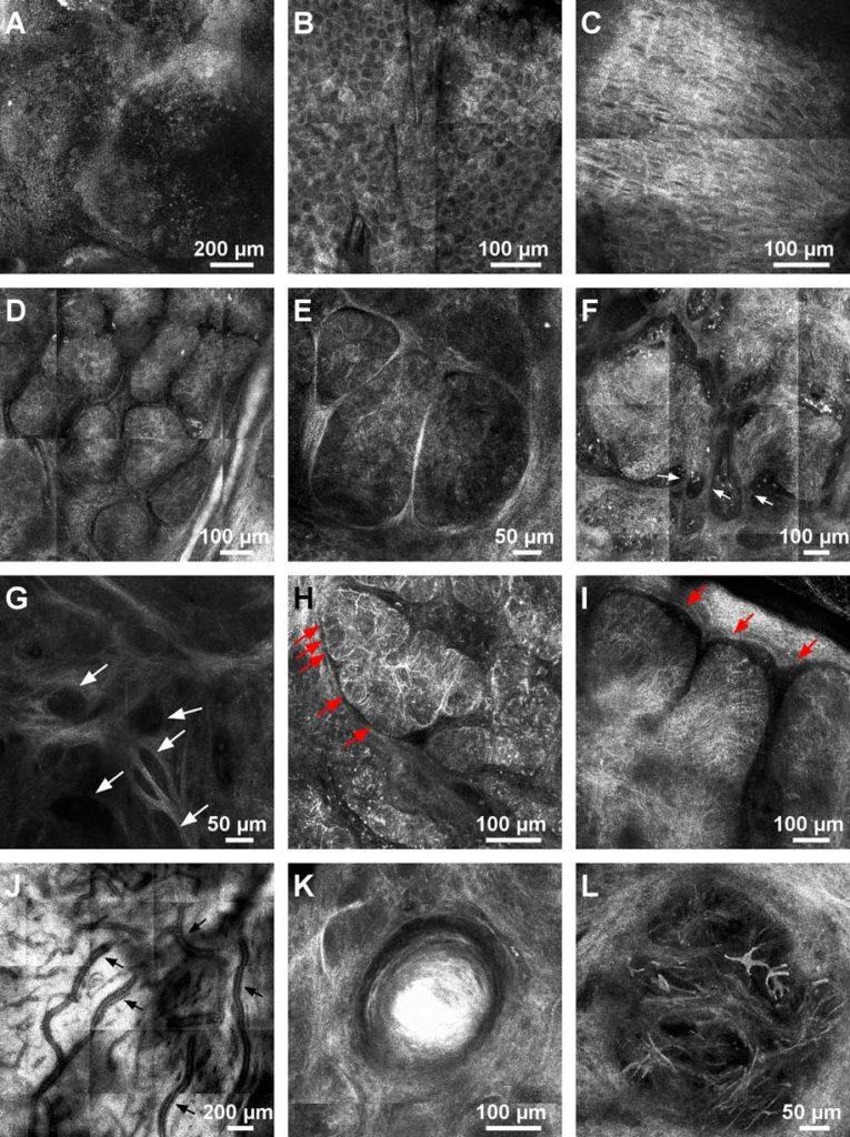 aspecte ale carcinomului bazocelular - biopsie virtuala