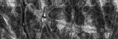 Biopsie virtuala