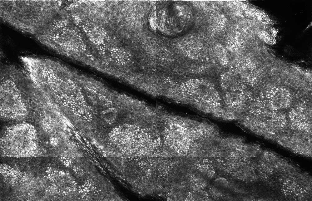 Stratul bazal la MCR - aspect de piatra de pavaj - biopsie optica
