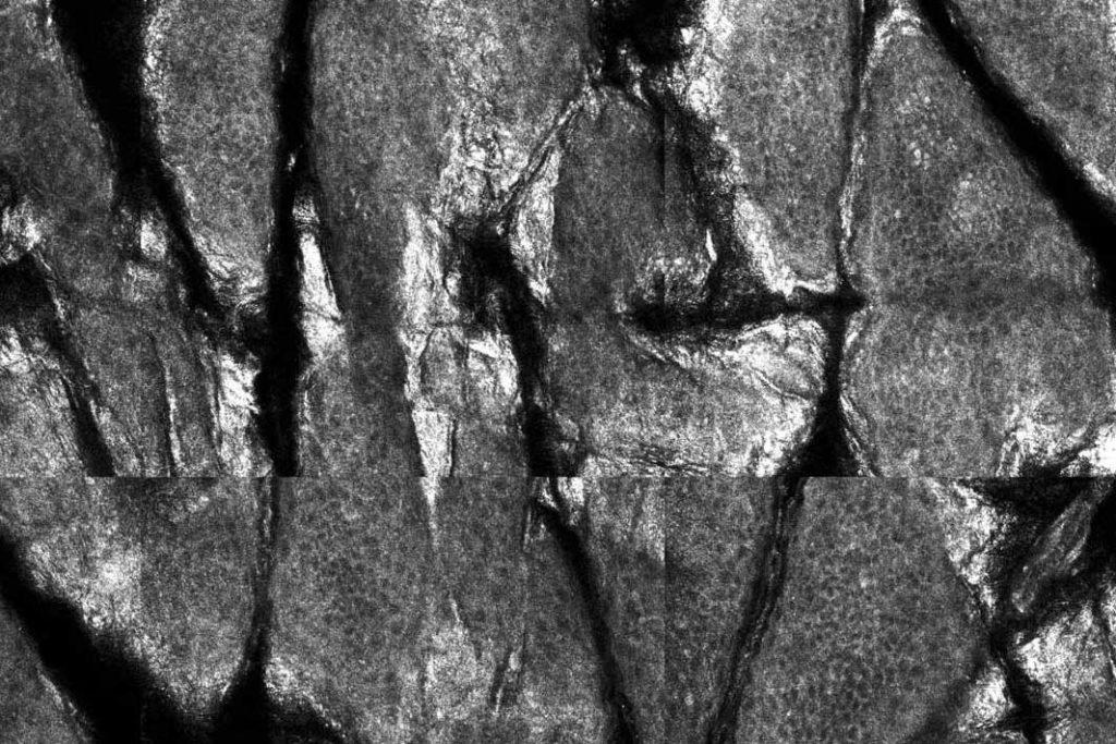 aspectul confocal al stratului cornos al epidermului