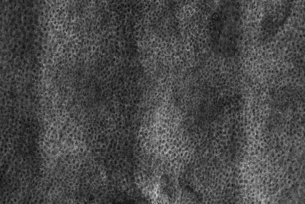 aspectul confocal al stratului spinos al epidermului