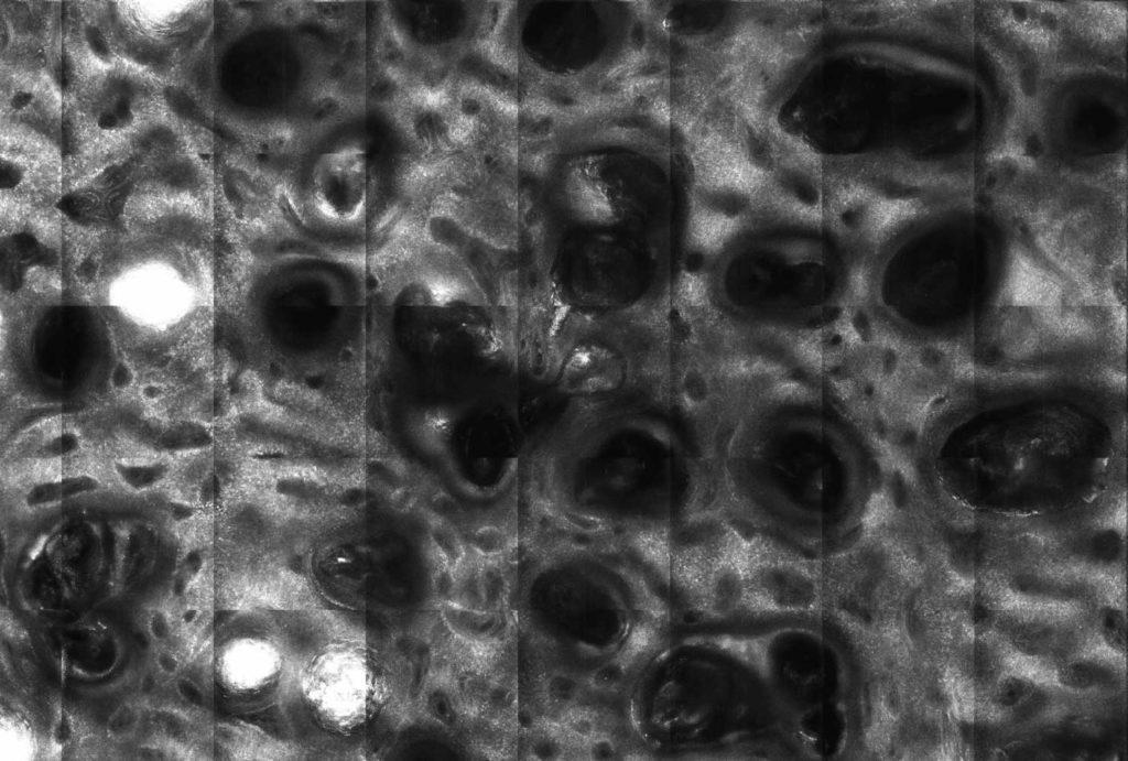 aspect confocal al keratozelor seboreice - biopsie virtuala