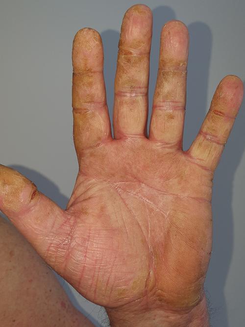 metode de infecție cu viermi rotunzi papiloma virusi simptomi