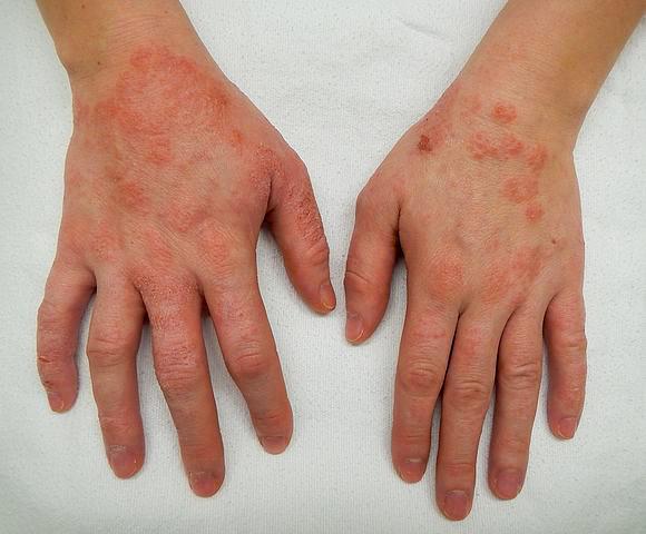dermatita mainilor - de contact