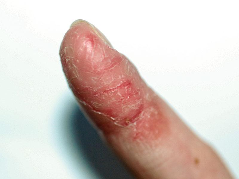 dermatita mainilor - pulpita