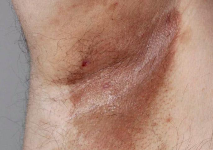 intertrigo tratament eritrasma