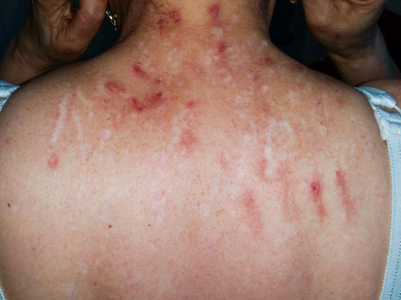 mancarimi de piele - prurigo nodular