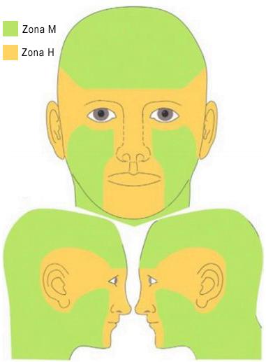 carcinomul bazocelular zone de risc