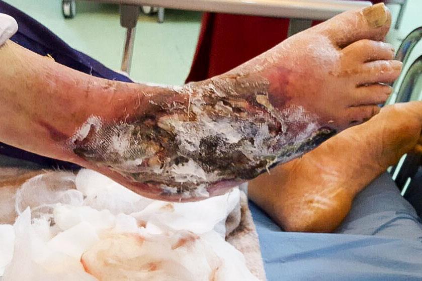 ulcer de gamba arterial