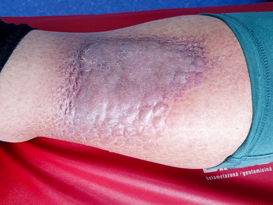 ulcer de gamba - lipodermatoscleroza