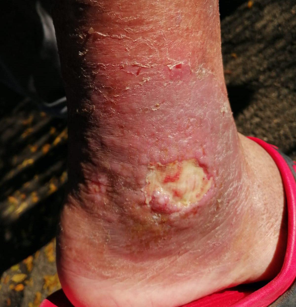 picioarele cu varicoză și fără varicoză și durere în mușchi